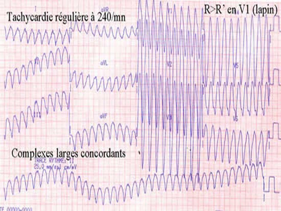 Messages Toute tachycardie à complexes larges survenant chez un patient ayant une cardiopathie ischémique est une TV jusqu à preuve du contraire Toute tachycardie à complexes larges mal tolérée est une TV jusqu à preuve du contraire