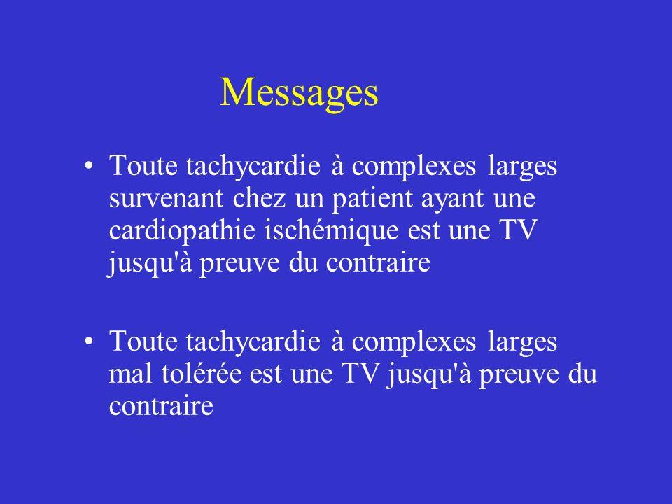 Messages Toute tachycardie à complexes larges survenant chez un patient ayant une cardiopathie ischémique est une TV jusqu'à preuve du contraire Toute