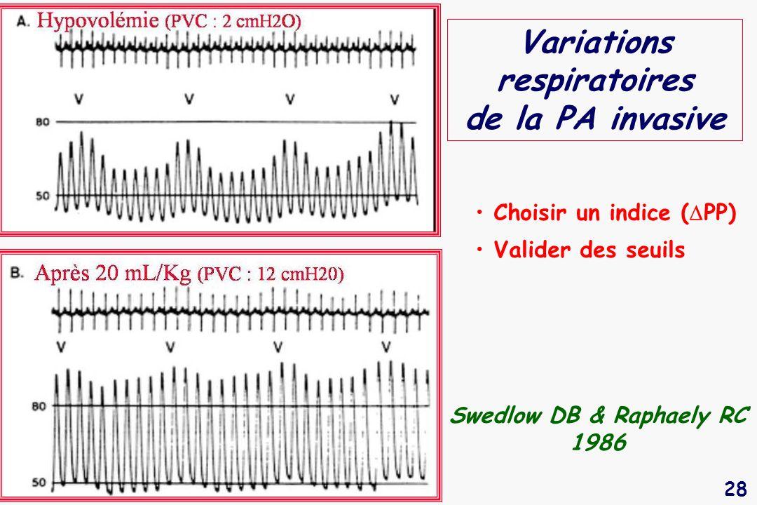 28 Variations respiratoires de la PA invasive Swedlow DB & Raphaely RC 1986 Choisir un indice ( PP) Valider des seuils