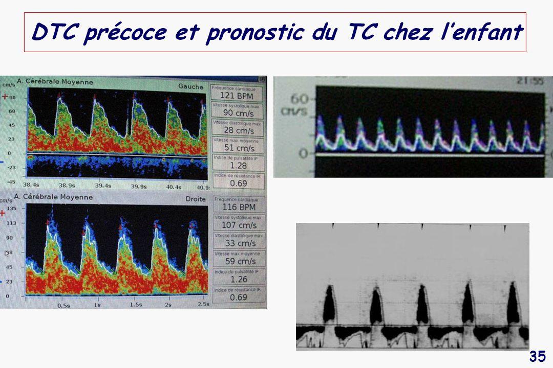 35 DTC précoce et pronostic du TC chez lenfant