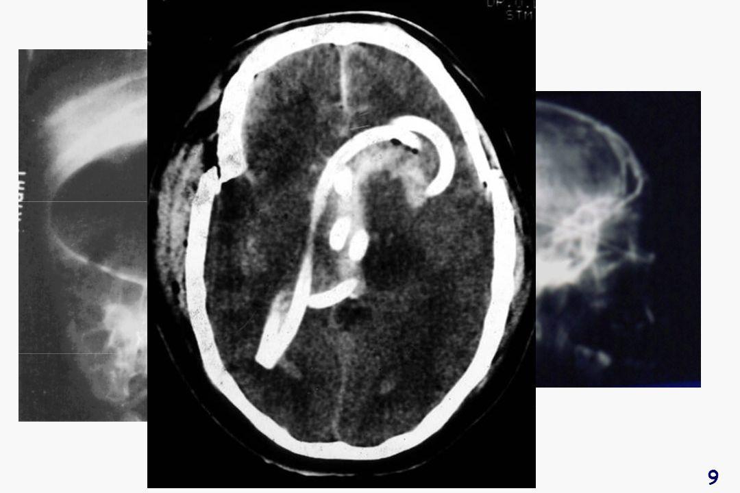 40 Monitorage de la PIC Intra- parenchymateux Intra- ventriculaire Lyons. Mayo Clin. Proc. 1990