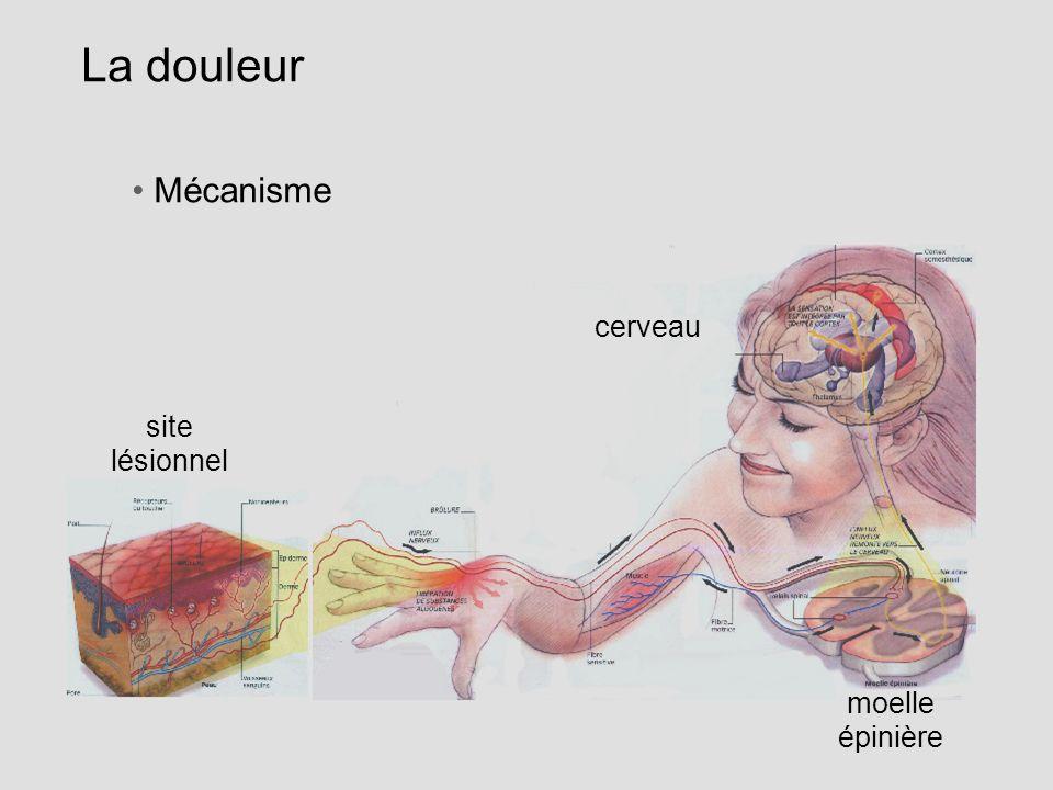 La douleur Mécanisme site lésionnel moelle épinière cerveau