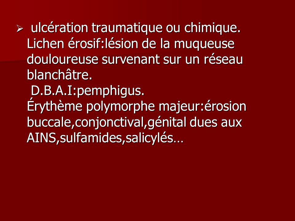 ulcération traumatique ou chimique. Lichen érosif:lésion de la muqueuse douloureuse survenant sur un réseau blanchâtre. D.B.A.I:pemphigus. Érythème po