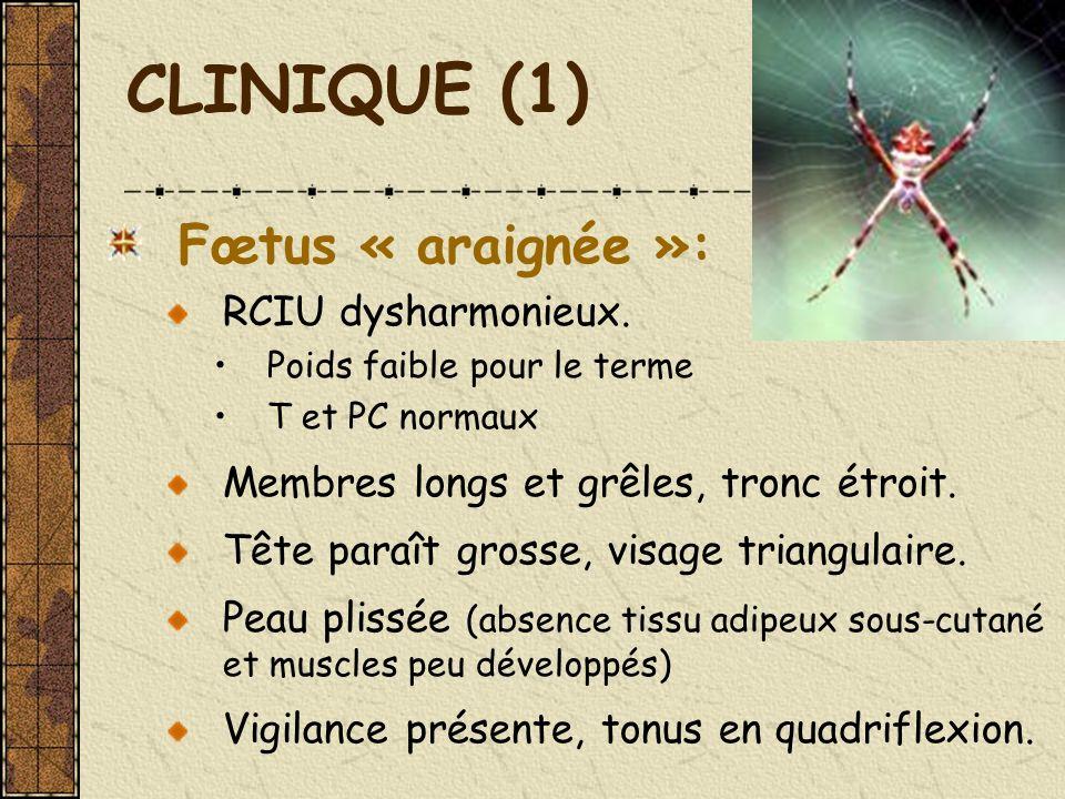 CLINIQUE (1) Fœtus « araignée »: RCIU dysharmonieux. Poids faible pour le terme T et PC normaux Membres longs et grêles, tronc étroit. Tête paraît gro
