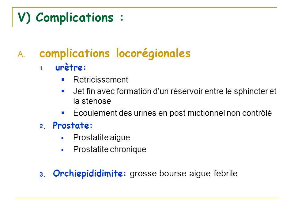 V) Complications : A. complications locorégionales 1. urètre: Retricissement Jet fin avec formation dun réservoir entre le sphincter et la sténose Éco