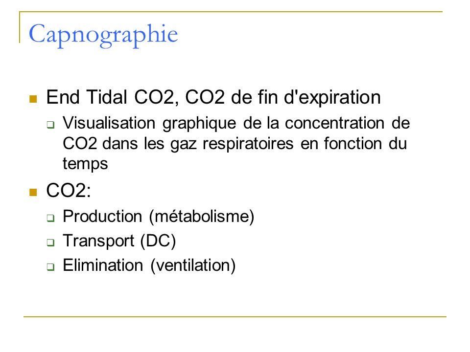 Capnographie End Tidal CO2, CO2 de fin d'expiration Visualisation graphique de la concentration de CO2 dans les gaz respiratoires en fonction du temps