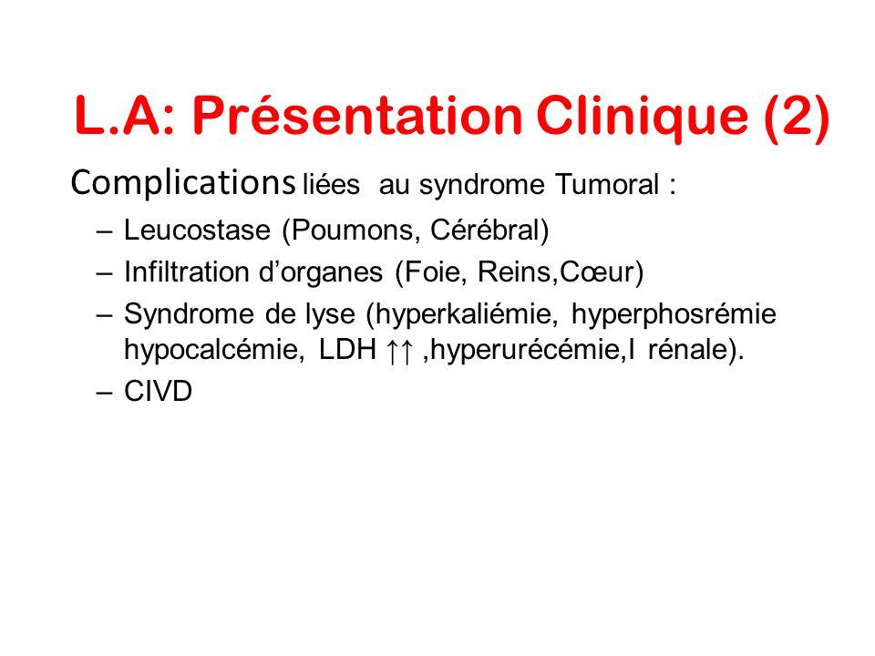 L.A: Présentation Clinique (2) Complications liées au syndrome Tumoral : –Leucostase (Poumons, Cérébral) –Infiltration dorganes (Foie, Reins,Cœur) –Sy