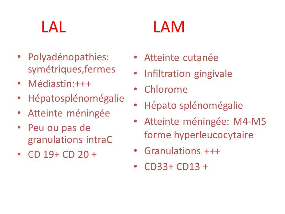 LAL LAM Polyadénopathies: symétriques,fermes Médiastin:+++ Hépatosplénomégalie Atteinte méningée Peu ou pas de granulations intraC CD 19+ CD 20 + Atte