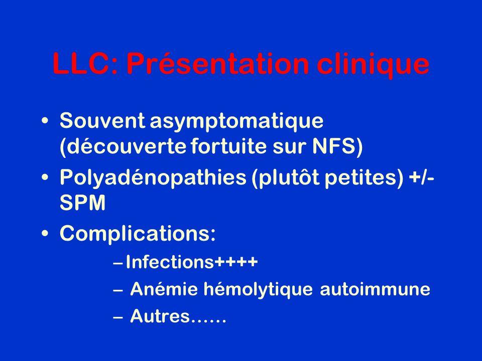 LLC: Présentation clinique Souvent asymptomatique (découverte fortuite sur NFS) Polyadénopathies (plutôt petites) +/- SPM Complications: –Infections++
