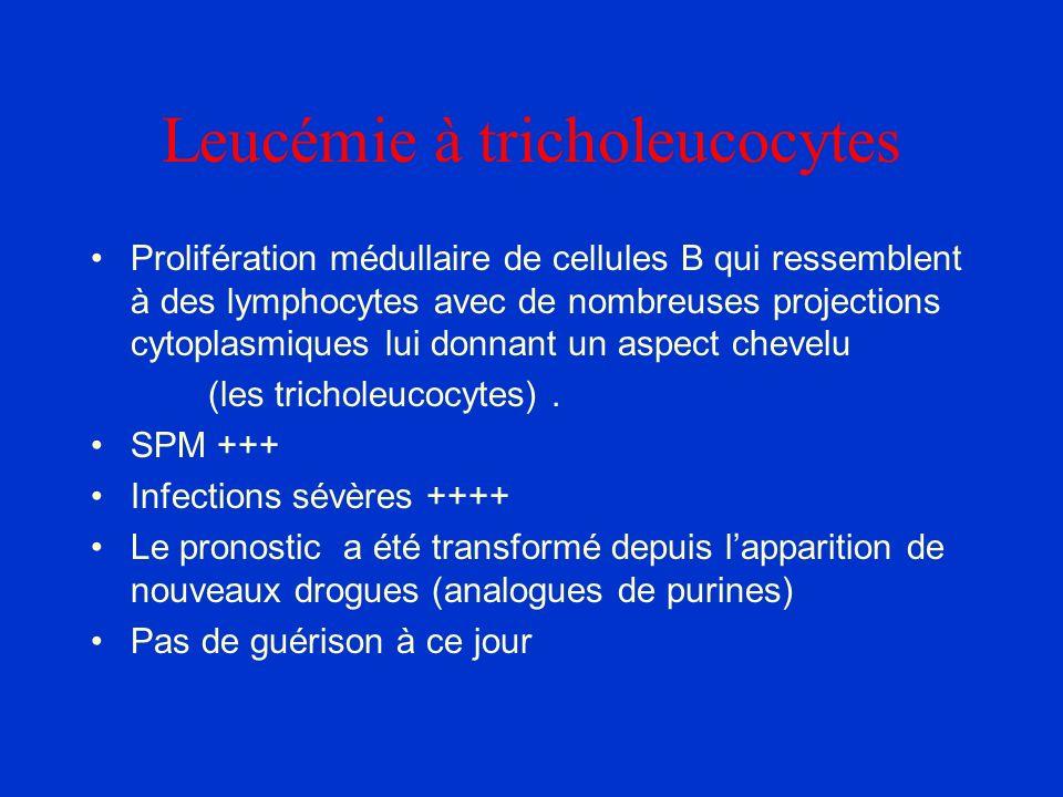 Leucémie à tricholeucocytes Prolifération médullaire de cellules B qui ressemblent à des lymphocytes avec de nombreuses projections cytoplasmiques lui