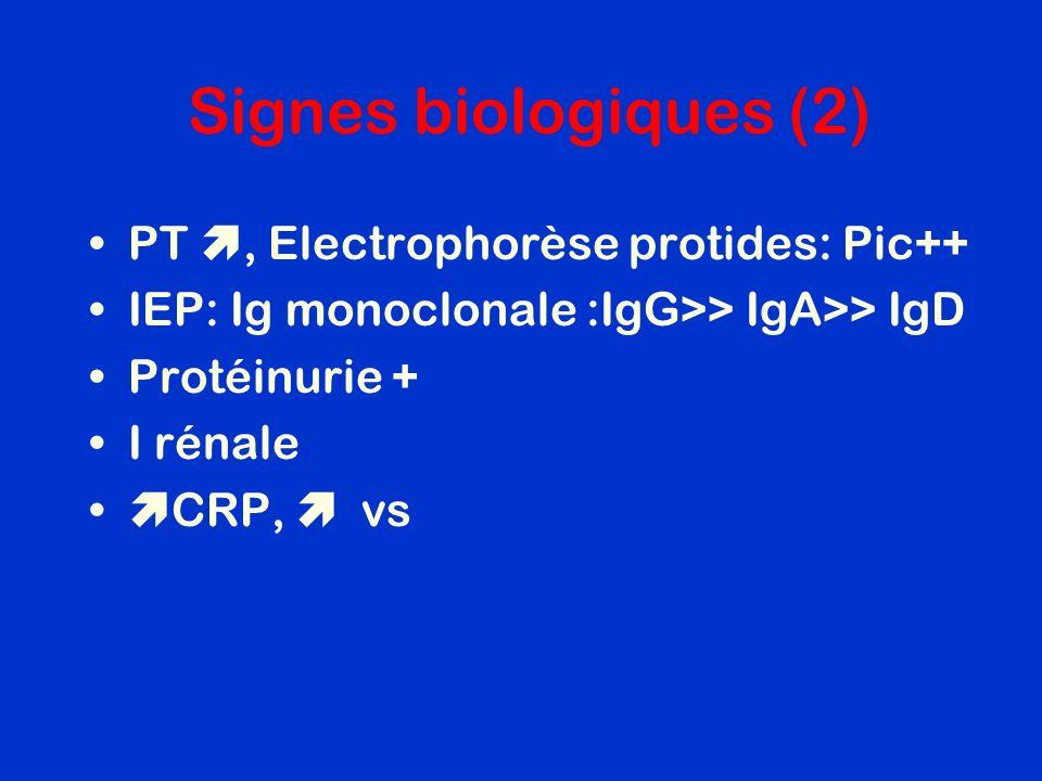 Signes biologiques (2) PT, Electrophorèse protides: Pic++ IEP: Ig monoclonale :IgG>> IgA>> IgD Protéinurie + I rénale CRP, vs