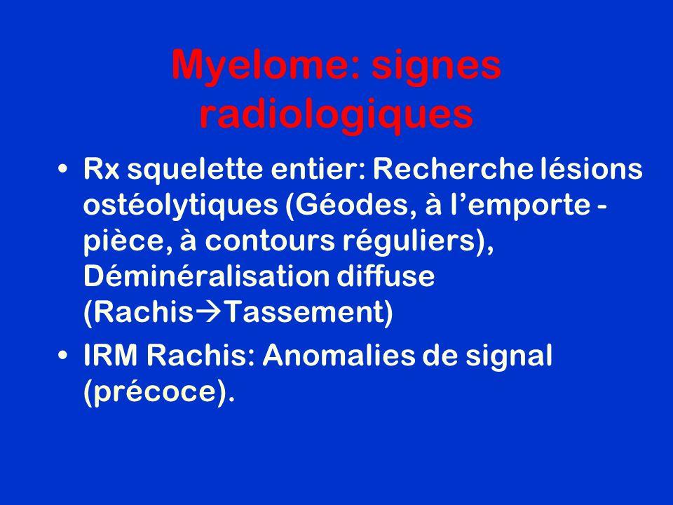 Myelome: signes radiologiques Rx squelette entier: Recherche lésions ostéolytiques (Géodes, à lemporte - pièce, à contours réguliers), Déminéralisatio