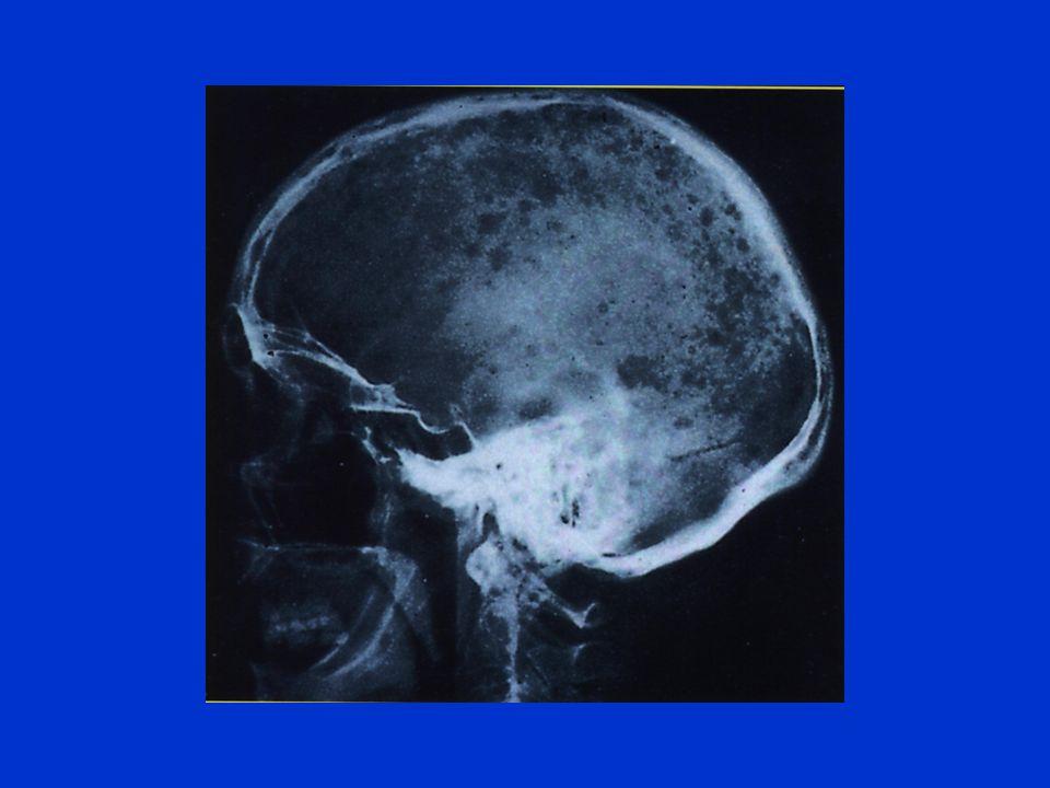Evolution Fonction masse tumorale Stade IStade IIStade III Calcémie< 3mM>3mM Hb> 10gr/dl8-10<8gr/dl Pic IgG< 50 gr/l50-70>70gr/l B-J<4gr/l4-12>12gr/l Lésions osseuses O 2