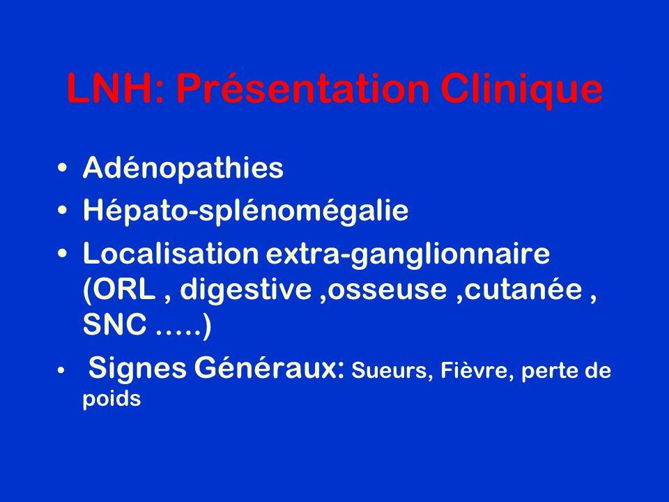 LNH: Présentation Clinique Adénopathies Hépato-splénomégalie Localisation extra-ganglionnaire (ORL, digestive,osseuse,cutanée, SNC …..) Signes Générau