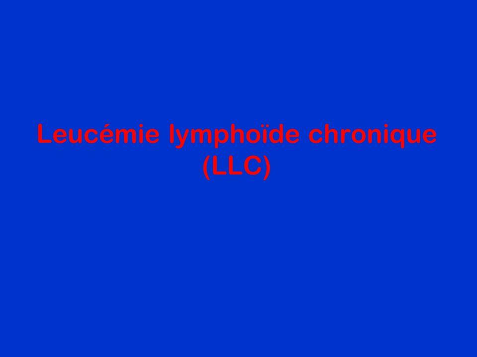LLC : Leucémie Lymphoide Chronique Prolifération médullaire et sanguine de petits lymphocytes B matures.