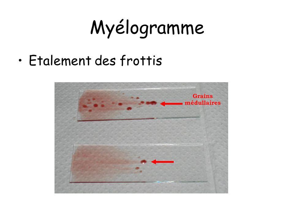 Myélogramme Etalement des frottis