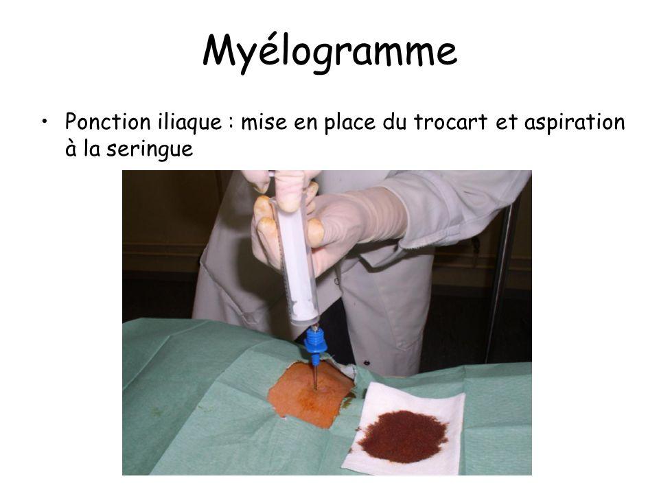 Myélogramme Ponction iliaque : mise en place du trocart et aspiration à la seringue