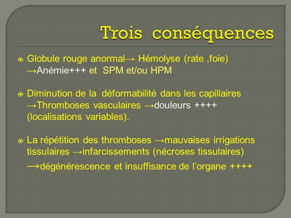 Globule rouge anormal Hémolyse (rate,foie)Anémie+++ et SPM et/ou HPM Diminution de la déformabilité dans les capillaires Thromboses vasculaires douleurs ++++ (localisations variables).