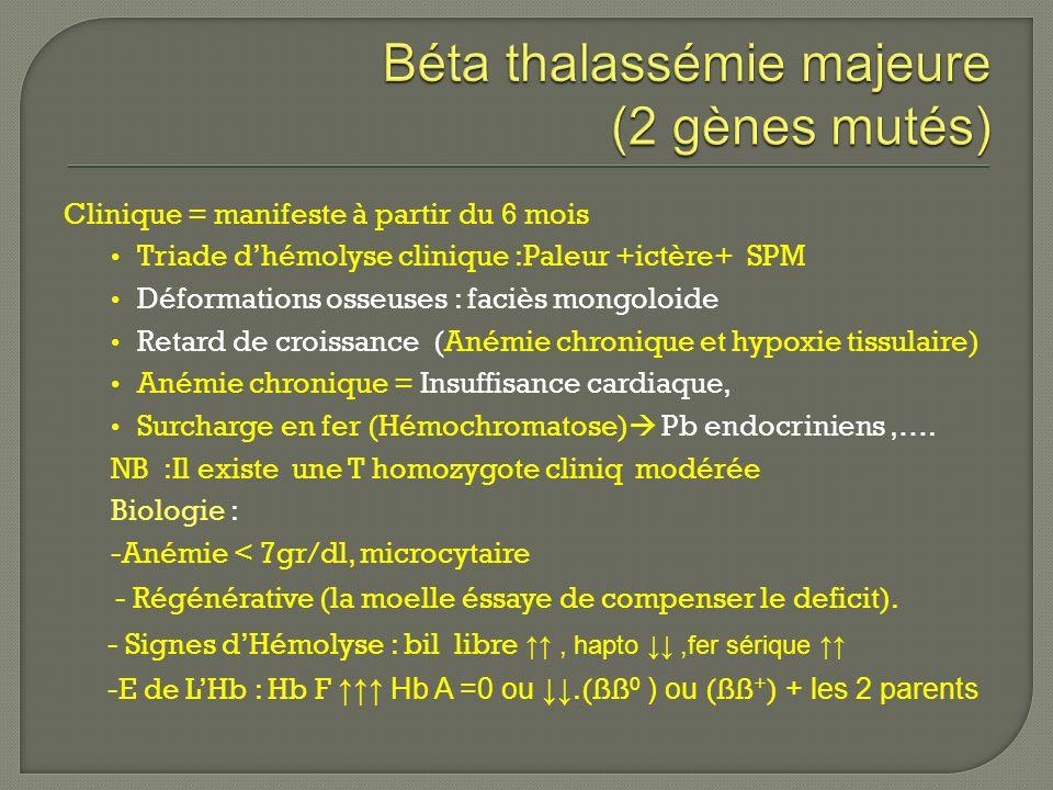 Clinique = manifeste à partir du 6 mois Triade dhémolyse clinique :Paleur +ictère+ SPM Déformations osseuses : faciès mongoloide Retard de croissance