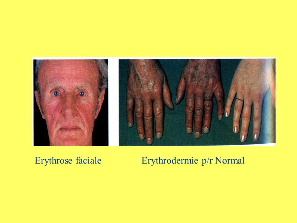 Erythrose faciale Erythrodermie p/r Normal