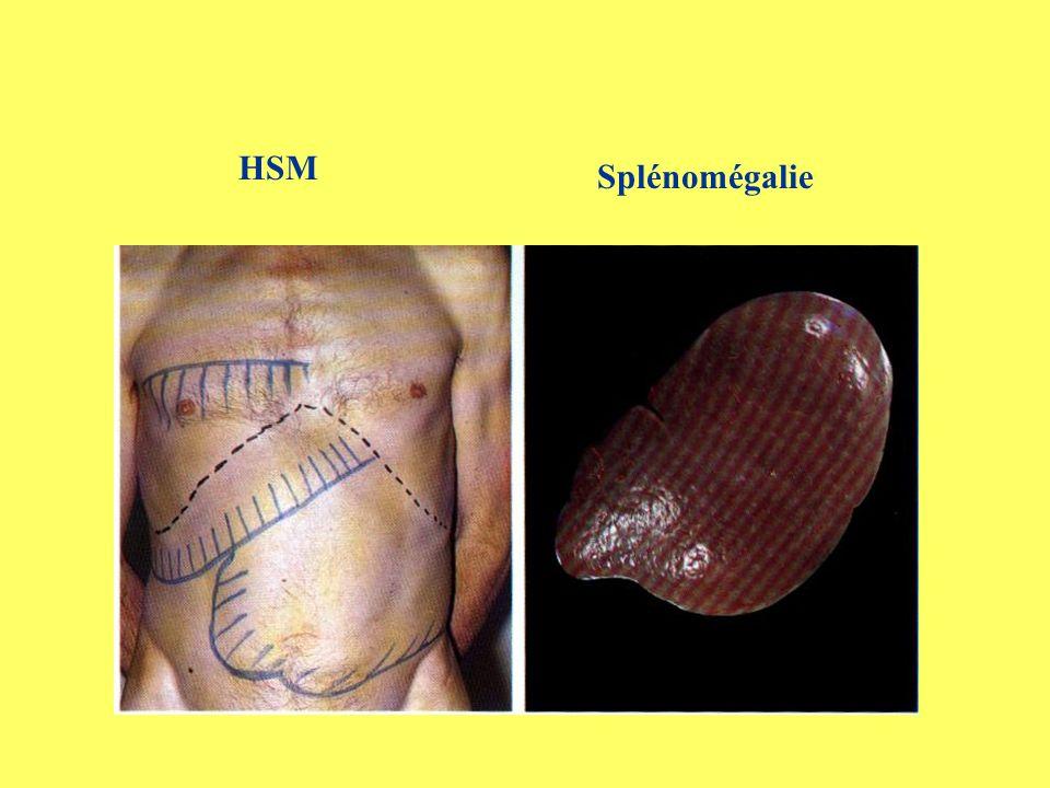 HSM Splénomégalie