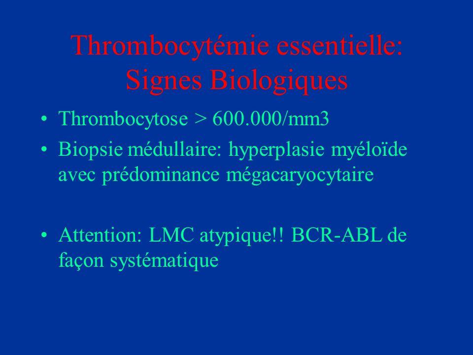 Thrombocytémie essentielle: Signes Biologiques Thrombocytose > 600.000/mm3 Biopsie médullaire: hyperplasie myéloïde avec prédominance mégacaryocytaire