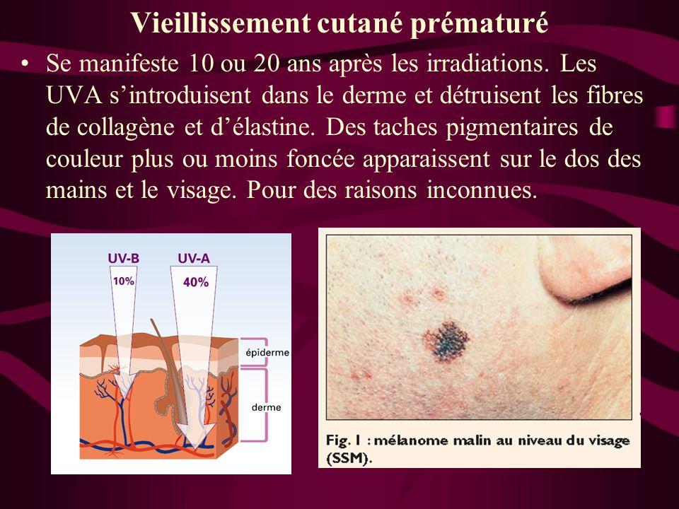 Vieillissement cutané prématuré Se manifeste 10 ou 20 ans après les irradiations. Les UVA sintroduisent dans le derme et détruisent les fibres de coll