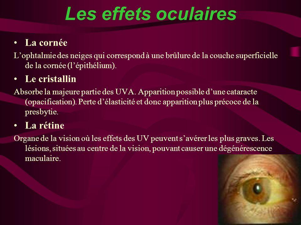 Les effets oculaires La cornée Lophtalmie des neiges qui correspond à une brûlure de la couche superficielle de la cornée (lépithélium). Le cristallin