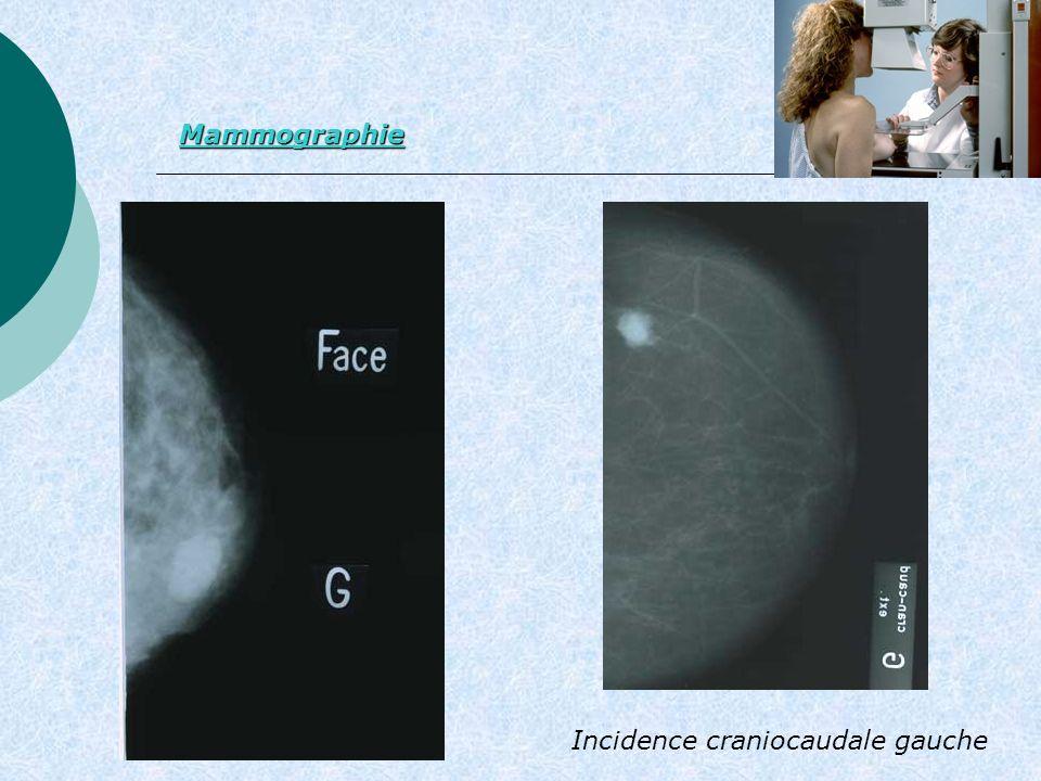 Incidence craniocaudale gauche Mammographie