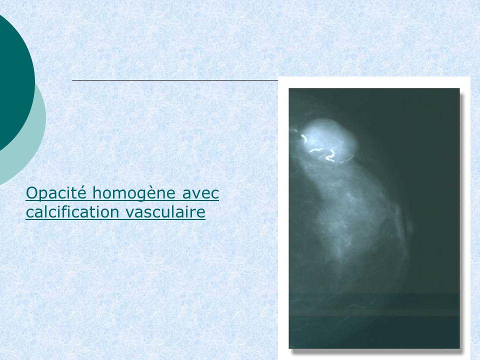 Opacité homogène avec calcification vasculaire