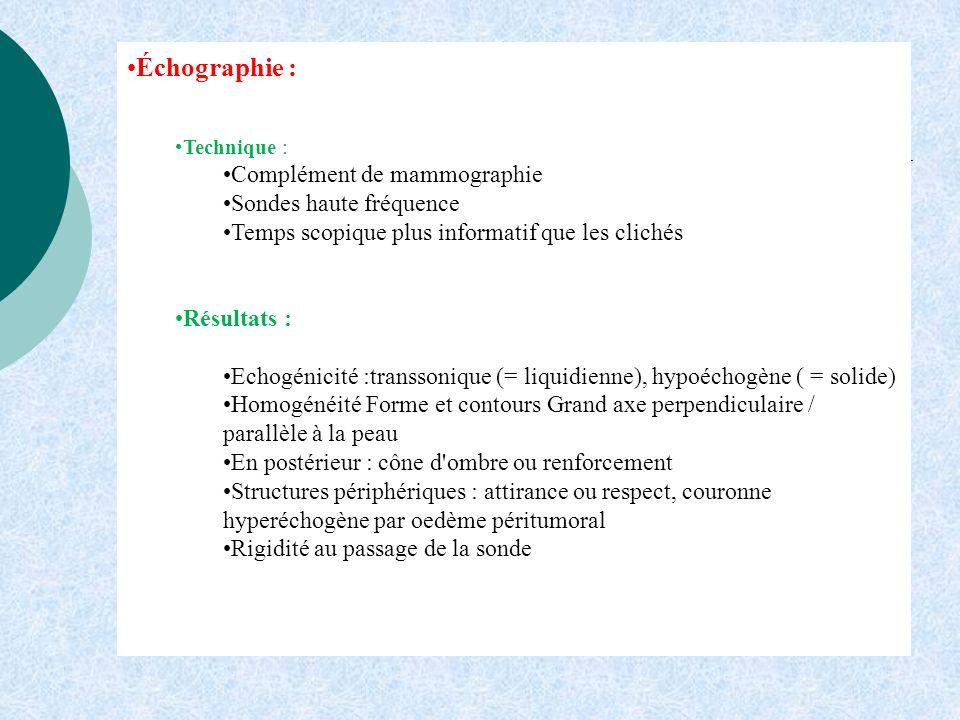 Échographie : Technique : Complément de mammographie Sondes haute fréquence Temps scopique plus informatif que les clichés Résultats : Echogénicité :t
