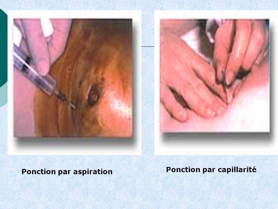 Ponction par aspiration Ponction par capillarité