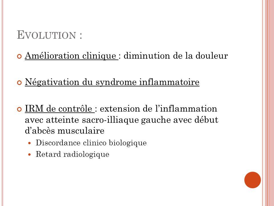 E VOLUTION : Amélioration clinique : diminution de la douleur Négativation du syndrome inflammatoire IRM de contrôle : extension de linflammation avec