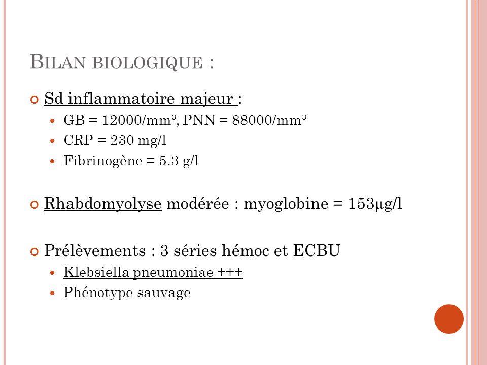 B ILAN BIOLOGIQUE : Sd inflammatoire majeur : GB = 12000/mm³, PNN = 88000/mm³ CRP = 230 mg/l Fibrinogène = 5.3 g/l Rhabdomyolyse modérée : myoglobine