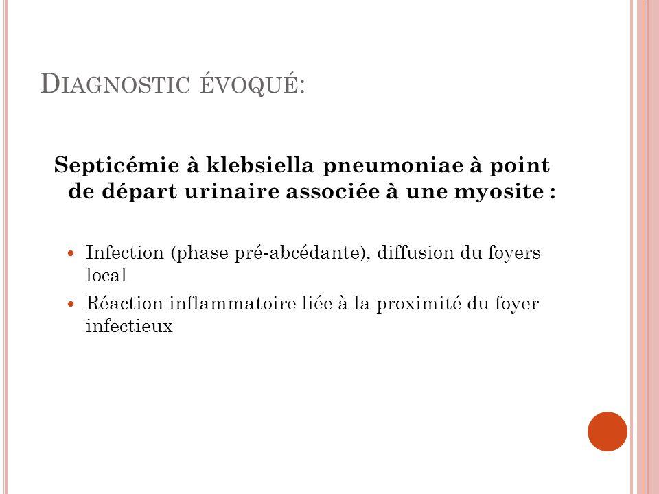 D IAGNOSTIC ÉVOQUÉ : Septicémie à klebsiella pneumoniae à point de départ urinaire associée à une myosite : Infection (phase pré-abcédante), diffusion