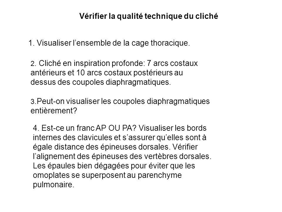 1. Visualiser lensemble de la cage thoracique. Vérifier la qualité technique du cliché 2. Cliché en inspiration profonde: 7 arcs costaux antérieurs et