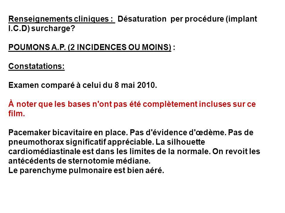 Renseignements cliniques : Désaturation per procédure (implant I.C.D) surcharge? POUMONS A.P. (2 INCIDENCES OU MOINS) : Constatations: Examen comparé