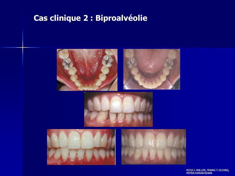 ROSS J. MILLER, TRANG T. DUONG, MITRA DERAKHSHAN Cas clinique 2 : Biproalvéolie