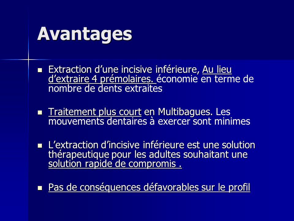 Avantages Extraction dune incisive inférieure, Au lieu dextraire 4 prémolaires. Extraction dune incisive inférieure, Au lieu dextraire 4 prémolaires.