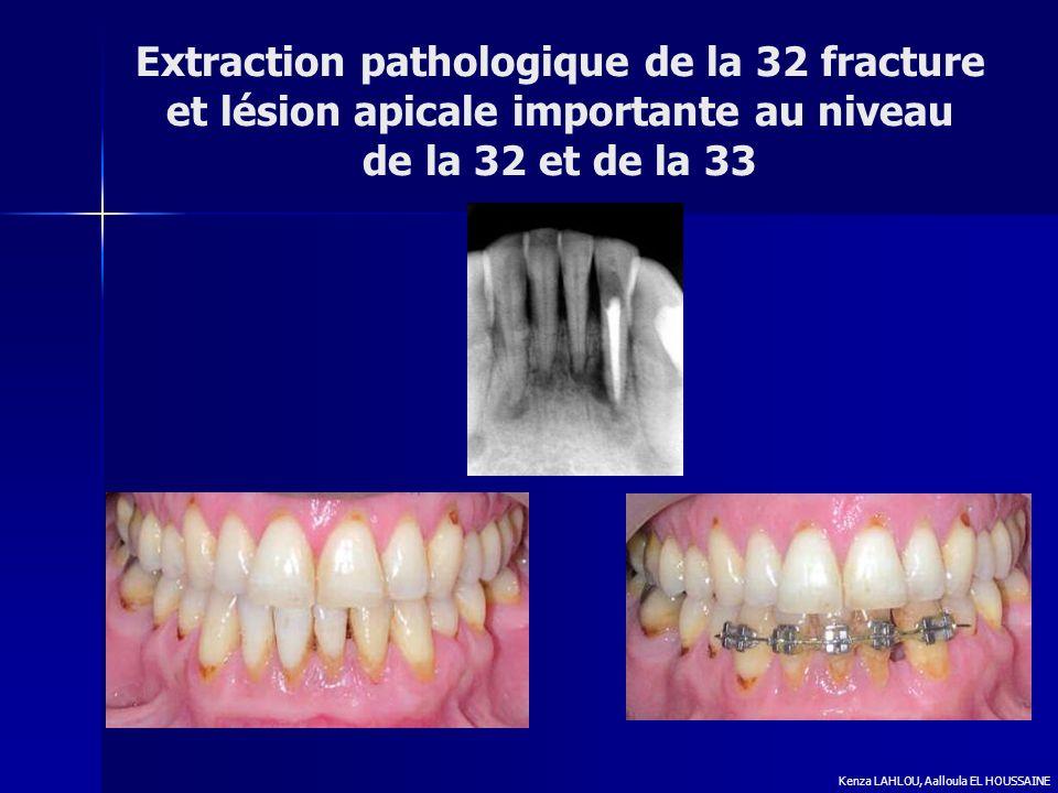 Extraction pathologique de la 32 fracture et lésion apicale importante au niveau de la 32 et de la 33 Kenza LAHLOU, Aalloula EL HOUSSAINE