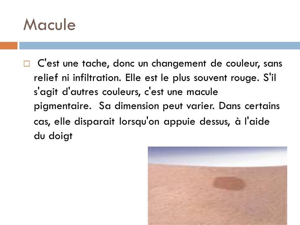 Macule C'est une tache, donc un changement de couleur, sans relief ni infiltration. Elle est le plus souvent rouge. S'il s'agit d'autres couleurs, c'e