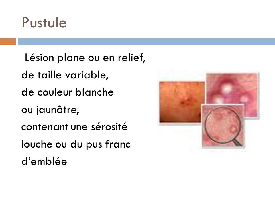 Pustule Lésion plane ou en relief, de taille variable, de couleur blanche ou jaunâtre, contenant une sérosité louche ou du pus franc demblée
