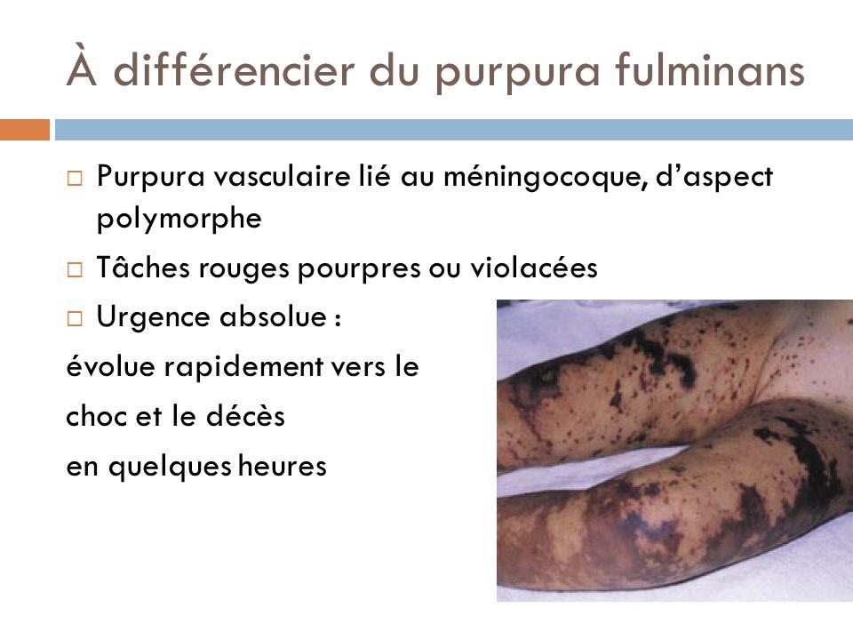 À différencier du purpura fulminans Purpura vasculaire lié au méningocoque, daspect polymorphe Tâches rouges pourpres ou violacées Urgence absolue : é