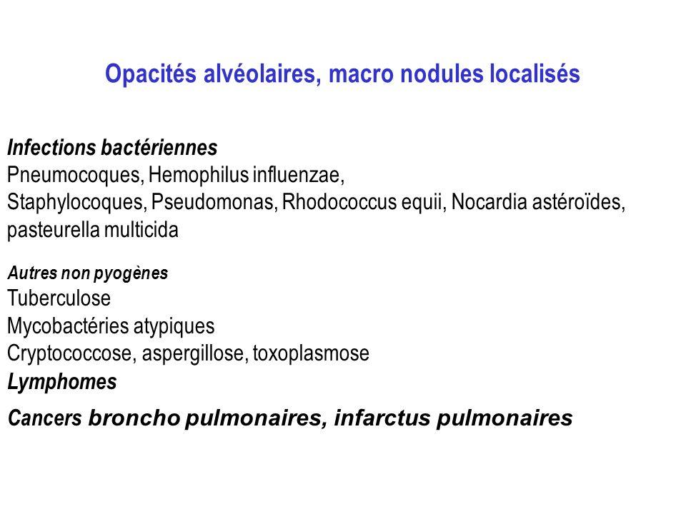 Opacités alvéolaires, macro nodules localisés Infections bactériennes Pneumocoques, Hemophilus influenzae, Staphylocoques, Pseudomonas, Rhodococcus eq