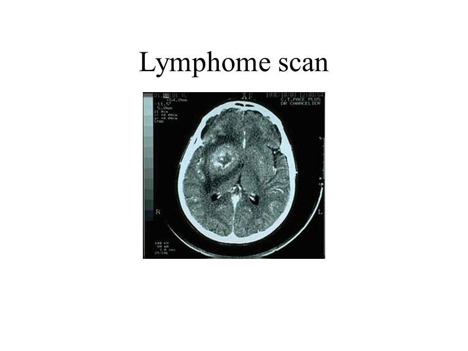 Lymphome scan