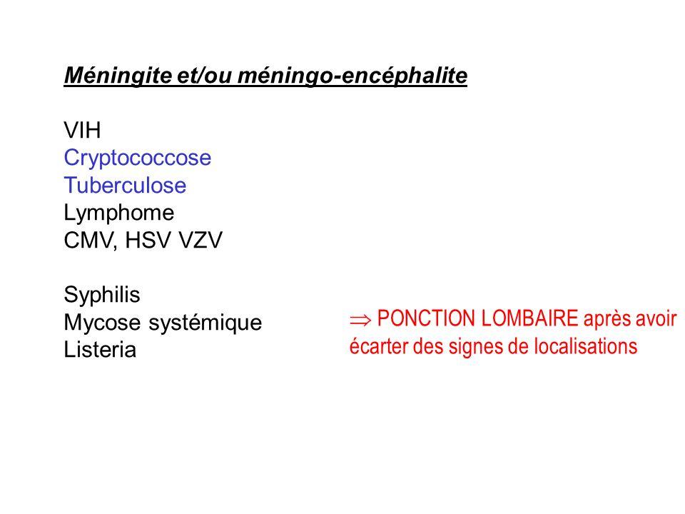 Méningite et/ou méningo-encéphalite VIH Cryptococcose Tuberculose Lymphome CMV, HSV VZV Syphilis Mycose systémique Listeria PONCTION LOMBAIRE après av
