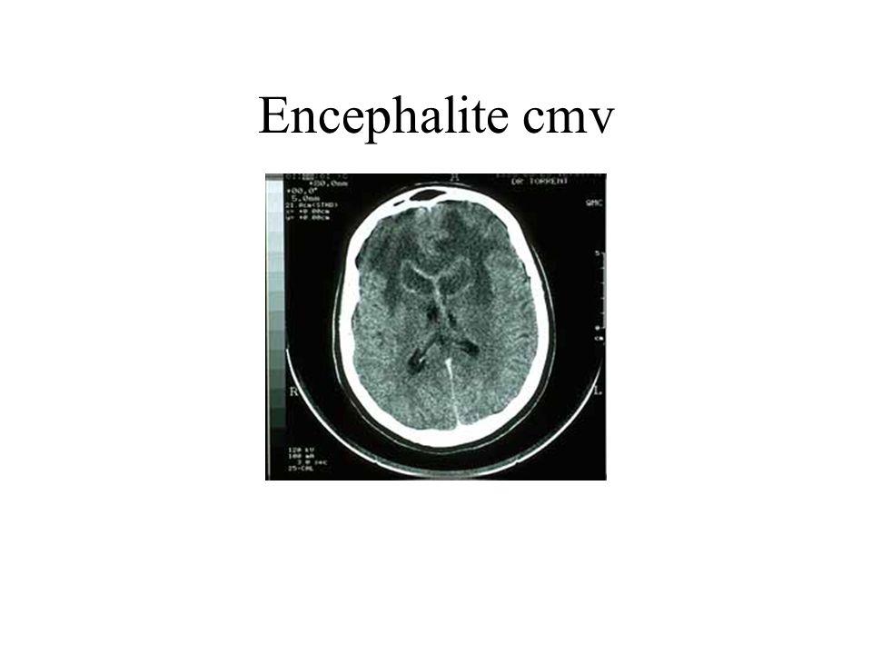 Encephalite cmv