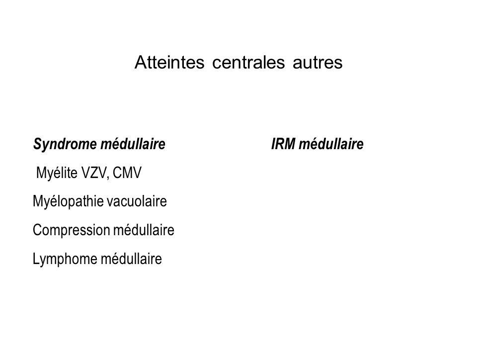 Syndrome médullaireIRM médullaire Myélite VZV, CMV Myélopathie vacuolaire Compression médullaire Lymphome médullaire Atteintes centrales autres