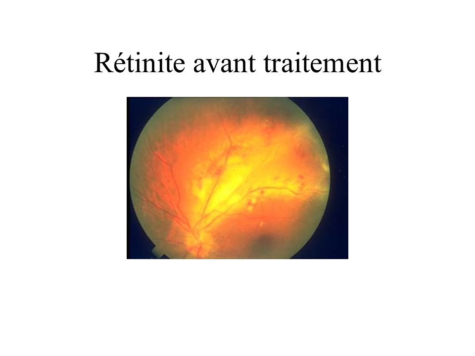 Rétinite avant traitement