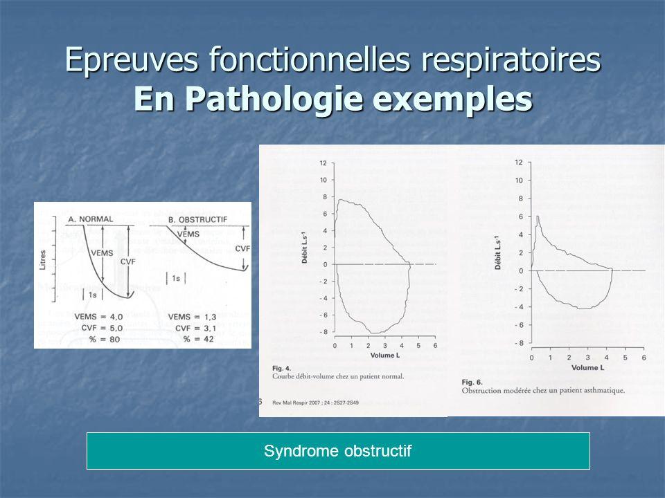 Epreuves fonctionnelles respiratoires En Pathologie exemples Syndrome obstructif